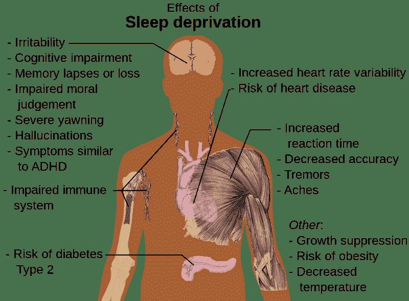 Diagram illustrating the risks of sleep deprivation